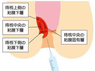 ジオン注射(ALTA療法)